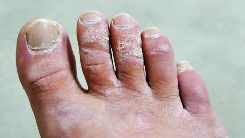 foot diseases, foot fungus diseases,