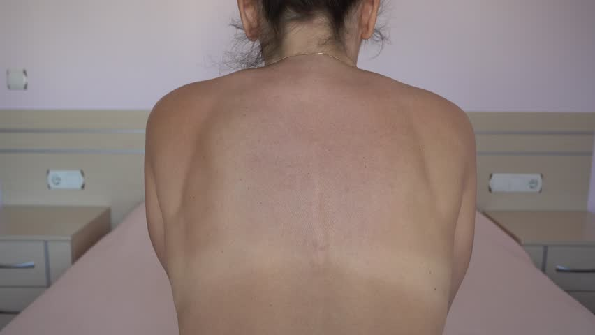 4K Woman with scoliosis clasps her hands behind her back