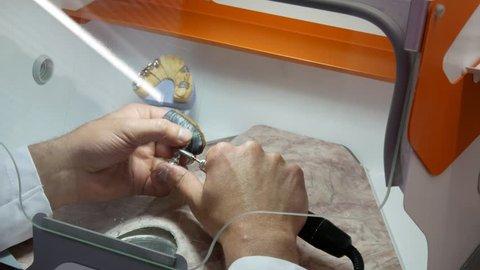 Dental Technician grinds the metal frame boron