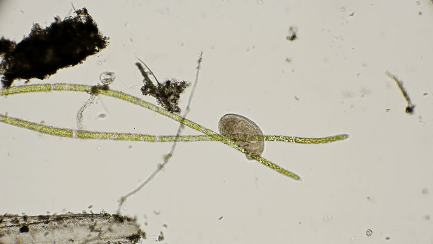 ciliated flat worm under a microscope