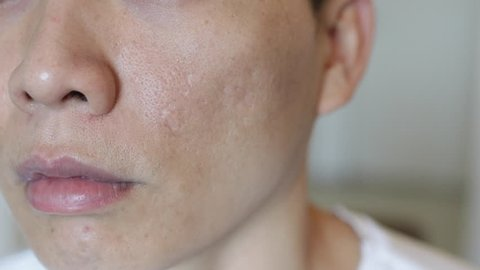 deep acne scars on Asian man's face and a lot of acne called blackhead also pigment around his upper cheeks and under eyes.