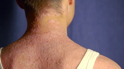 Scalp Disorders Stock Video Footage - 4K and HD Video Clips