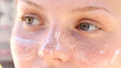 Teenage Girl With Freckles And Sun Cream On Her Face, Closeup