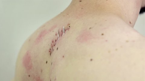 Removing thin stitches from surgical wound HD. Female person with blue long nails carefully taping away stitches that hold together surgical wound on male person back.