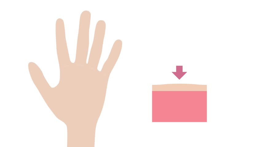 wart and Keratosis on hand graphic animation