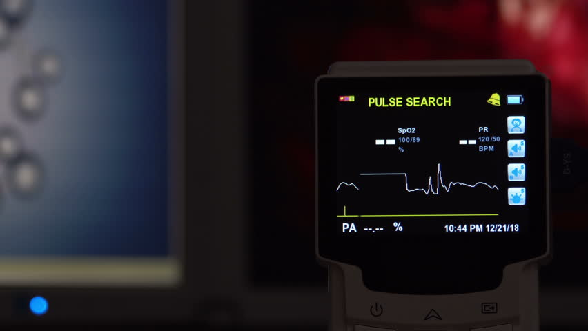 EKG monitor in hospital. Blood oxygen saturation, heart rate. | Shutterstock HD Video #1022415058