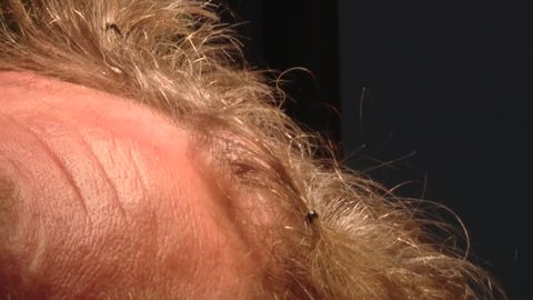 Surgical removal of scalp tumors  removal of basal cell carcinoma