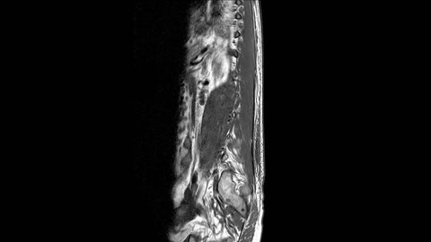 MRI OF THE SPINE The findings are probably TB spine.