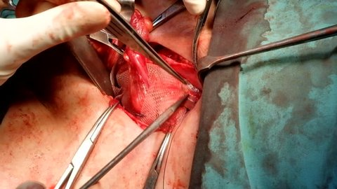 Footage showing how surgeon applied The Synthetic Mesh onto the hernia defect in Inguinal Hernia repair