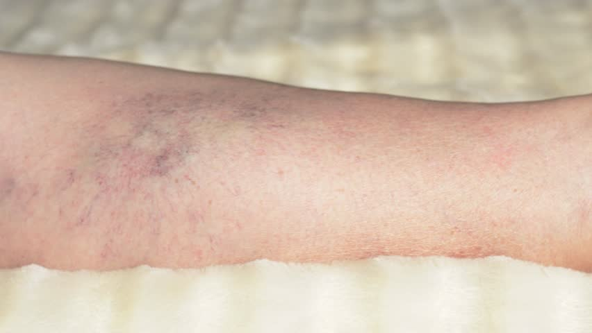 Varicose veins and thrombophlebitis in a woman's legs, close-up | Shutterstock HD Video #1024401308