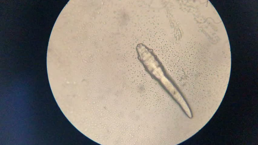 Mite in microscope   Shutterstock HD Video #1025652428