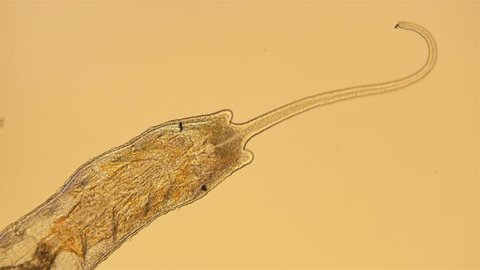 worm of the family Naididae under a microscope, Stylaria lacustris view, low-nebula Oligochaeta worm, pond dweller, diverse life in colors, 4K