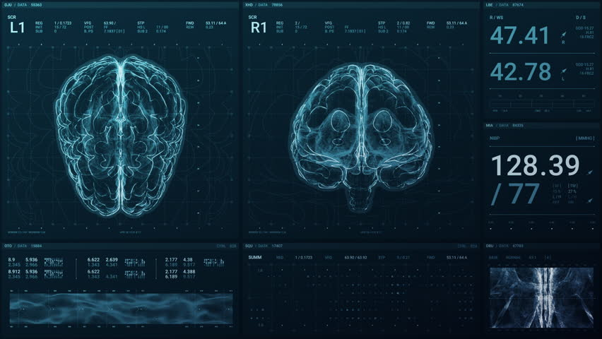 A high tech screen displays a brain in 3D and monitors its vital signs with statistical data for a neurology department | Shutterstock HD Video #1028934098