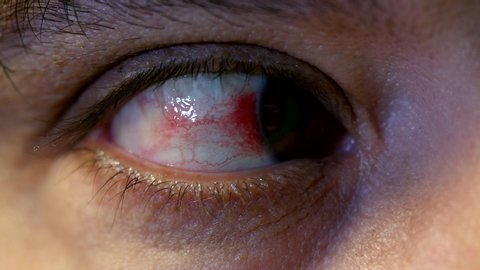 Close-up of annoyed red human eye with broken blood vessels, 4k shot