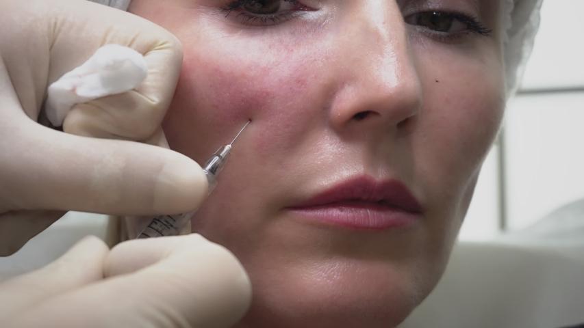 Beautiful Young Woman Getting Cosmetic Treatment Beauty Hyaluronic  Injection | Shutterstock HD Video #1036310828