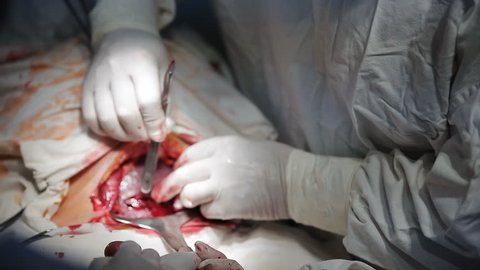Caesarean section, surgeon cutting stomach with scalpel, extreme close-up shot.