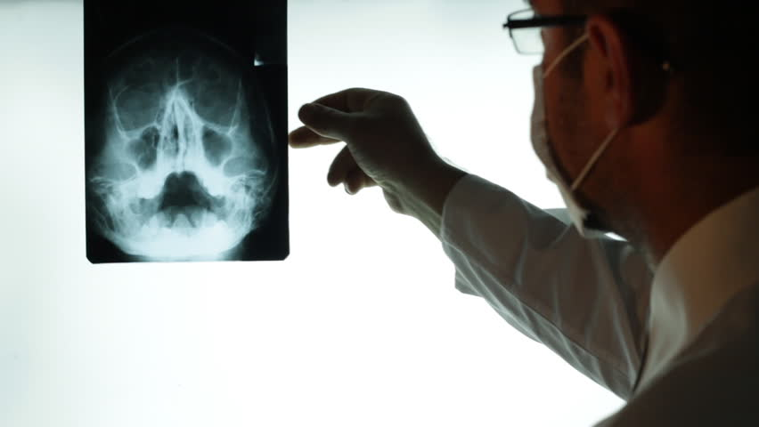 Doctor examining X-ray searching diagnosis. Doctor hand pointing on x-ray image