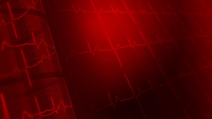 Heart Rate, Electrocardiogram, Ecg Medical Stock Footage ...
