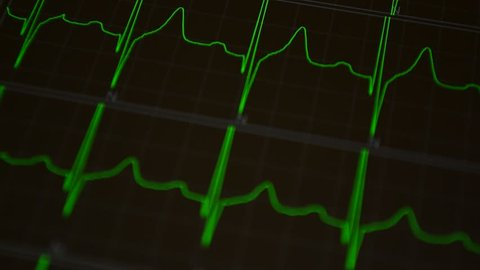 Heart Beat Line Stock Video Footage 4k And Hd Video Clips