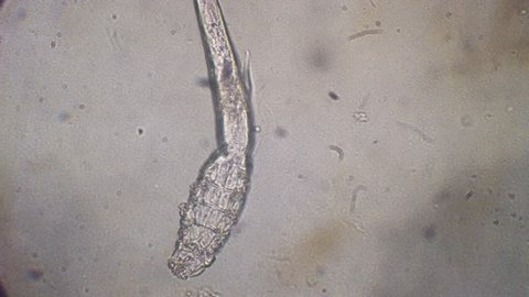 Demodectic Mange, Demodex (Demodex canis) seen under microscope at 400x magnification after doing a skin scrape.