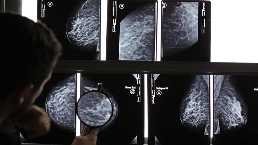 Mammography diagnostic