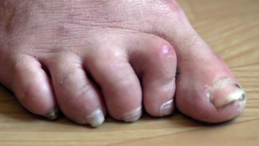 Stock video of toe nail fungus | 16847209 | Shutterstock