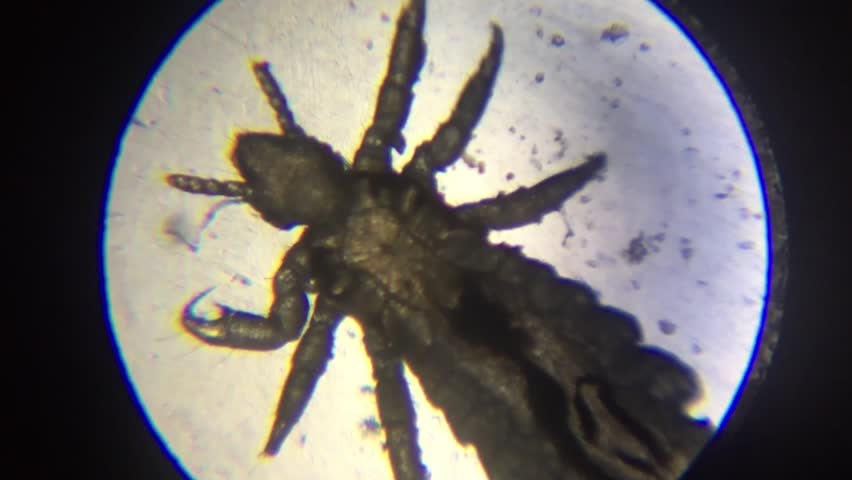 lice microscope view