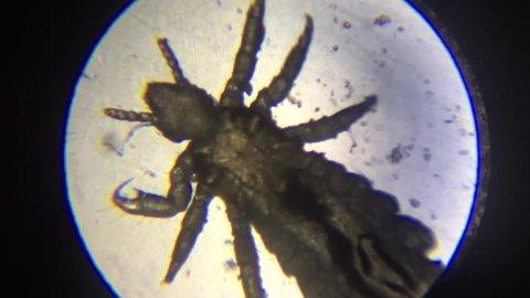 lice microscope view