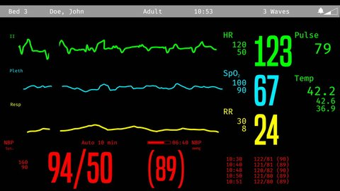 ICU screen monitoring dying patient, vital signs dropping, clinical death. Medical ICU monitor with patient's vital signs