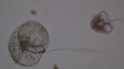 Noctiluca /Dinoflagellate (Marine Protozoa) under microscope.