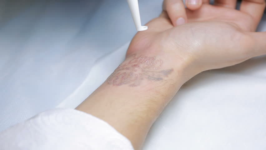Laser Tattoo Removal with Hand Stock Footage Video (100% Royalty-free)  22478038 | Shutterstock