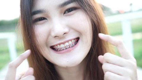 Slow motion : Young woman smiling with tooth brace