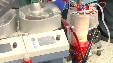 Working Heart-Lung Bypass Machine.  Surgery in modern operating room