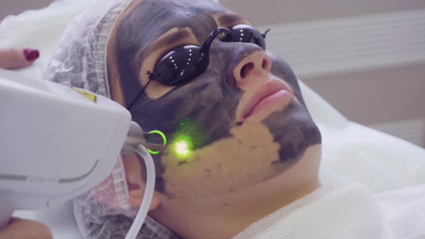 Carbon face peeling procedure. Laser pulses clean skin of the face. Hardware cosmetology treatment. Process of photothermolysis, warming the skin, laser carbon peeling. Facial skin rejuvenation. | Shutterstock HD Video #27058084