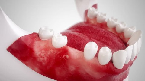 Dental implant - High end 3D animation In this animation film, you will see all the steps for using a dental implant.  The film was created with the greatest possible care.