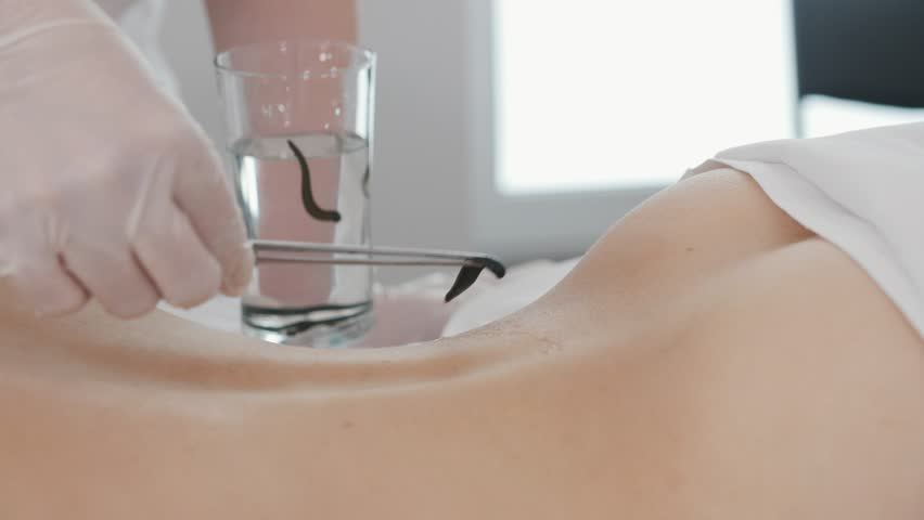 Doctor in clinic puts on leech on skin of woman, hirudotherapy  | Shutterstock HD Video #29164738
