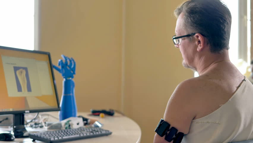 Man with the amputated arm using computer with wireless bionic sensors. 4K.