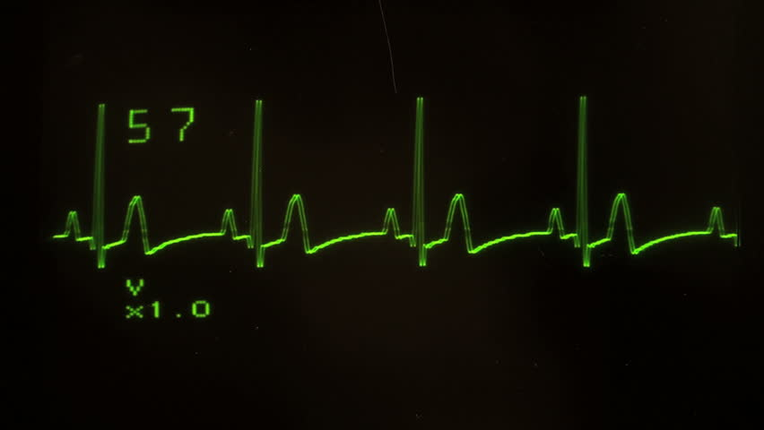 EKG defibrillator screen heart flatlines - with sound, HD 1080