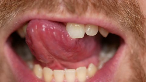 Close-up of teeth. A man shows his denture on two teeth.