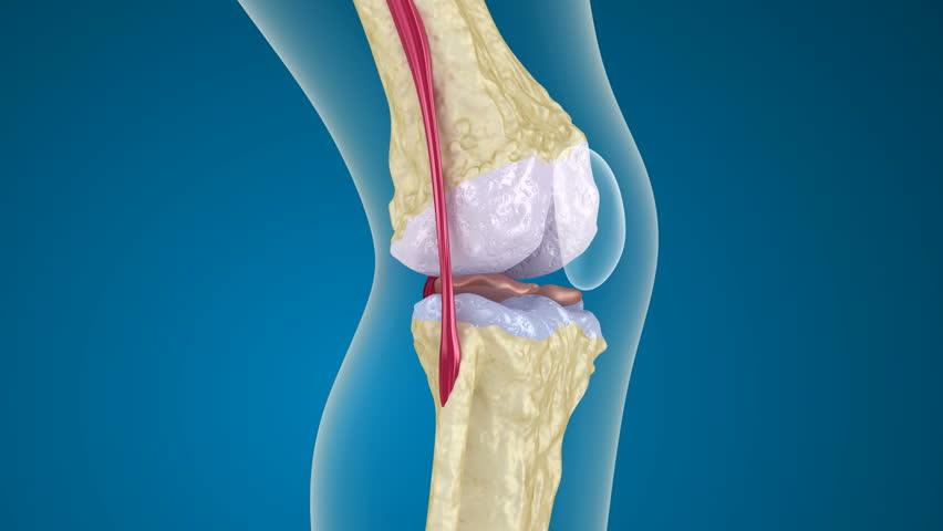 Как лечить коленный сустав остеопороз