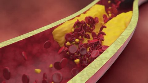 Plaque clogged artery. Digital animation.