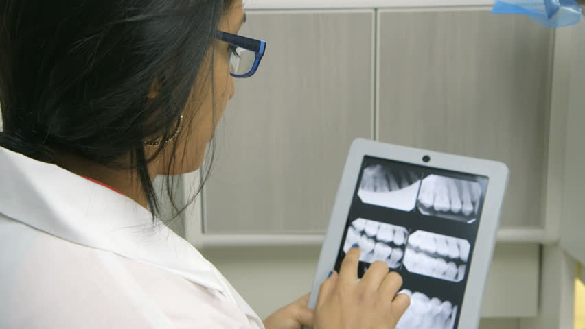 A female dentist or intern reviewing a dental x-ray explains what she sees to a patient who is off camera