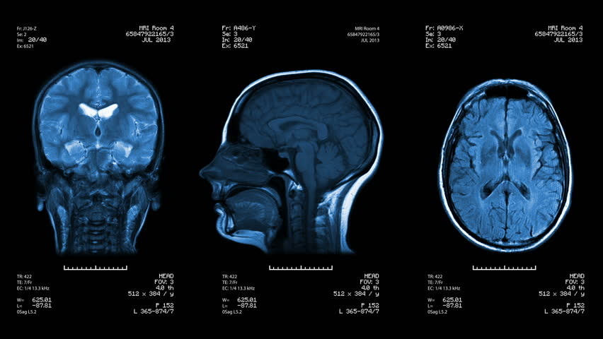 Three head views of MRI scan. Loopable. Blue. See more color options in my portfolio.