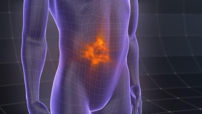 Stomach pain treatment. 3d animated X-ray human body.