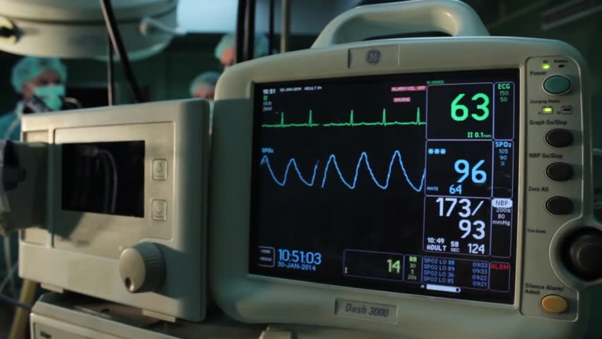 Ecg Monitor Patients Condition in Stock Footage Video (100% Royalty