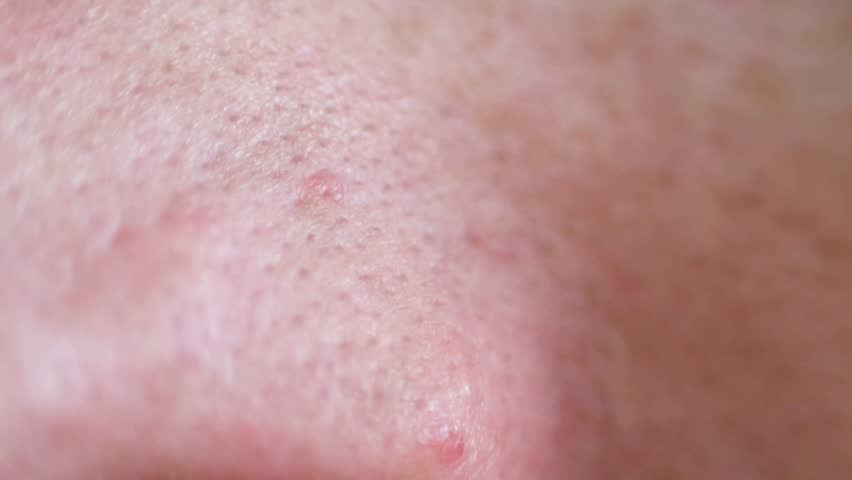 Header of blackhead