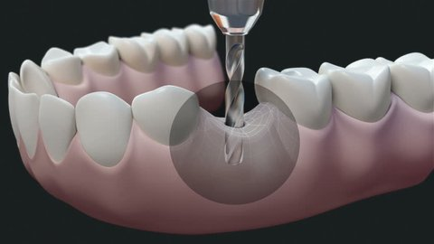 Dental Implant Dark. High quality animation 3D showing the installation process of dental implants.