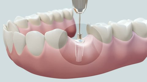 Dental Implant Bright. High quality animation 3D showing the installation process of dental implants.