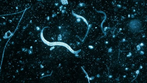Three Nematode Worms Seen In Dark Field Microscope With Blue Filter 200x