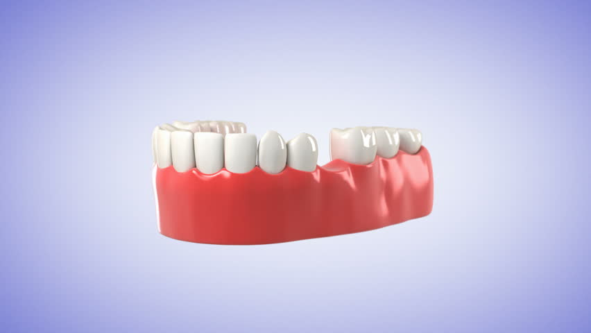 3 Unit Tooth Bridge. High quality 3D animation showing the installation process of Tooth Bridge. HD